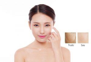 Cấy collagen tái sinh làn da lão hóa